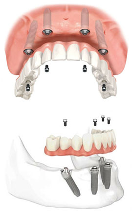 Implant Periodontal Associates NW Services AllOnFour