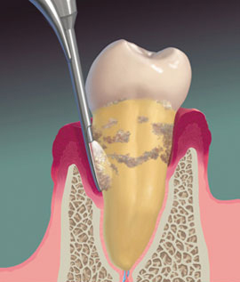 Implant Periodontal Associates NW Services Periscopy Illustration